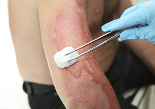 How to Treat a Burn - If you suffer a burn, there are some immediate steps you can take to ensure proper care is received, including first aid and home remedies. Burn treatment, treating burns.