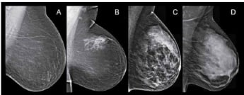 dense breast tissue mammograms 345x165.jpg