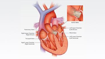 cirugía de próstata en la red de salud de lehigh vallyan